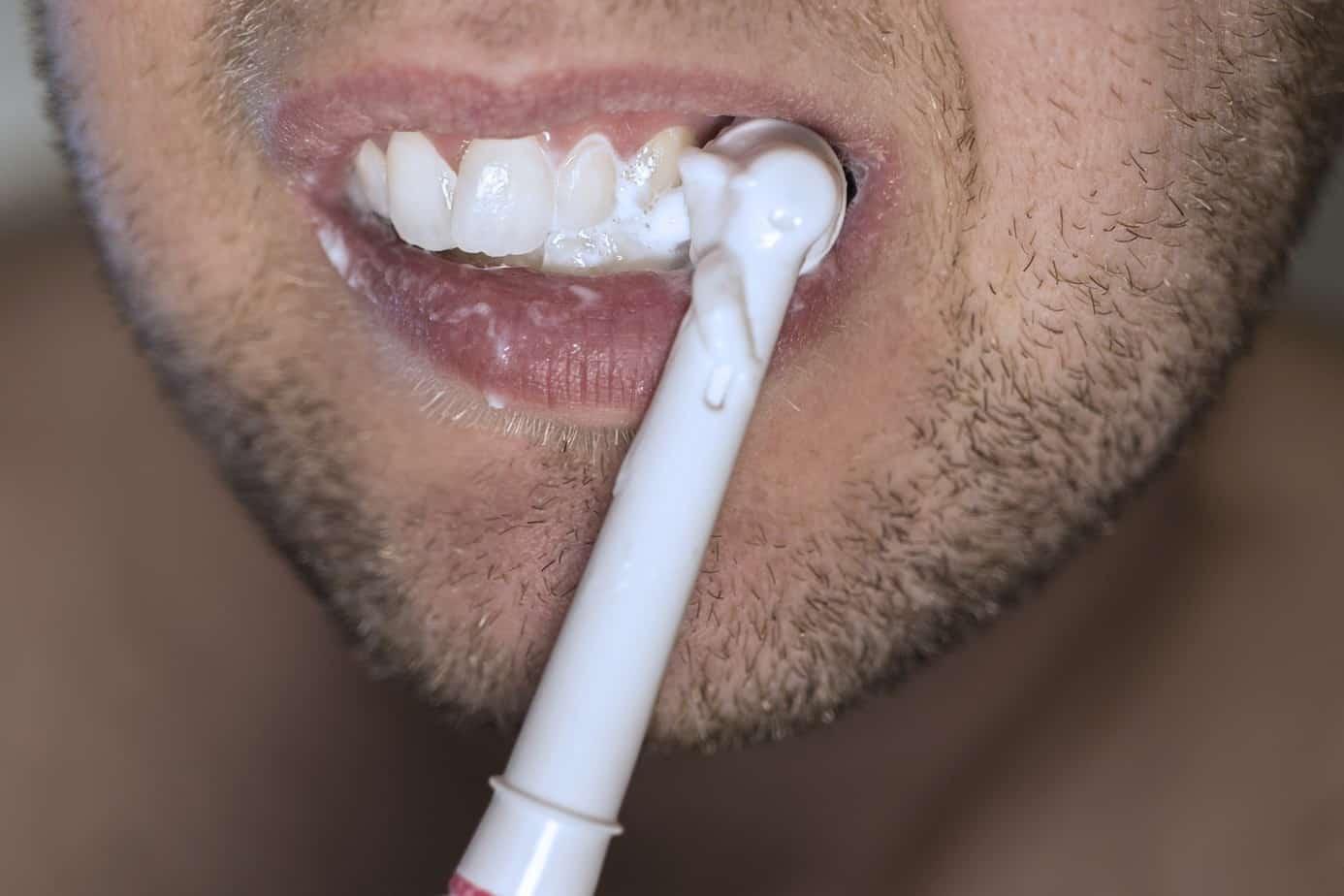 teeth-cropped